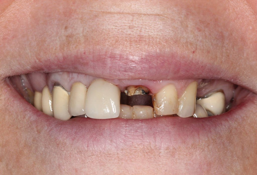 Немедленная имплантация и немедленная нагрузка Inverta Co-Axis от Southern Implants